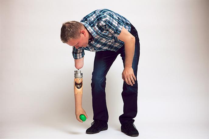 Prothèse réalisée par un orthoprothésiste