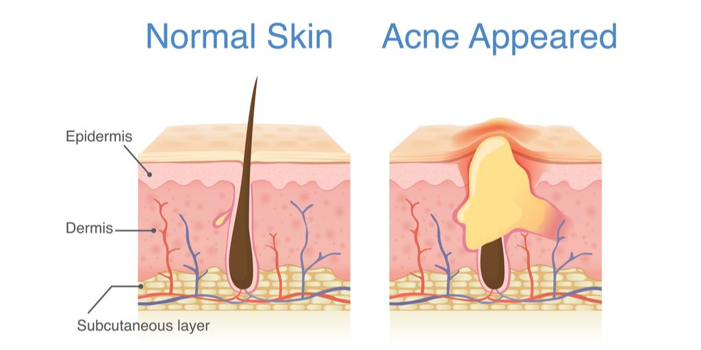 Schéma explication acné