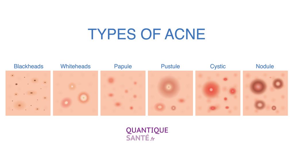 Les différents types d'acné