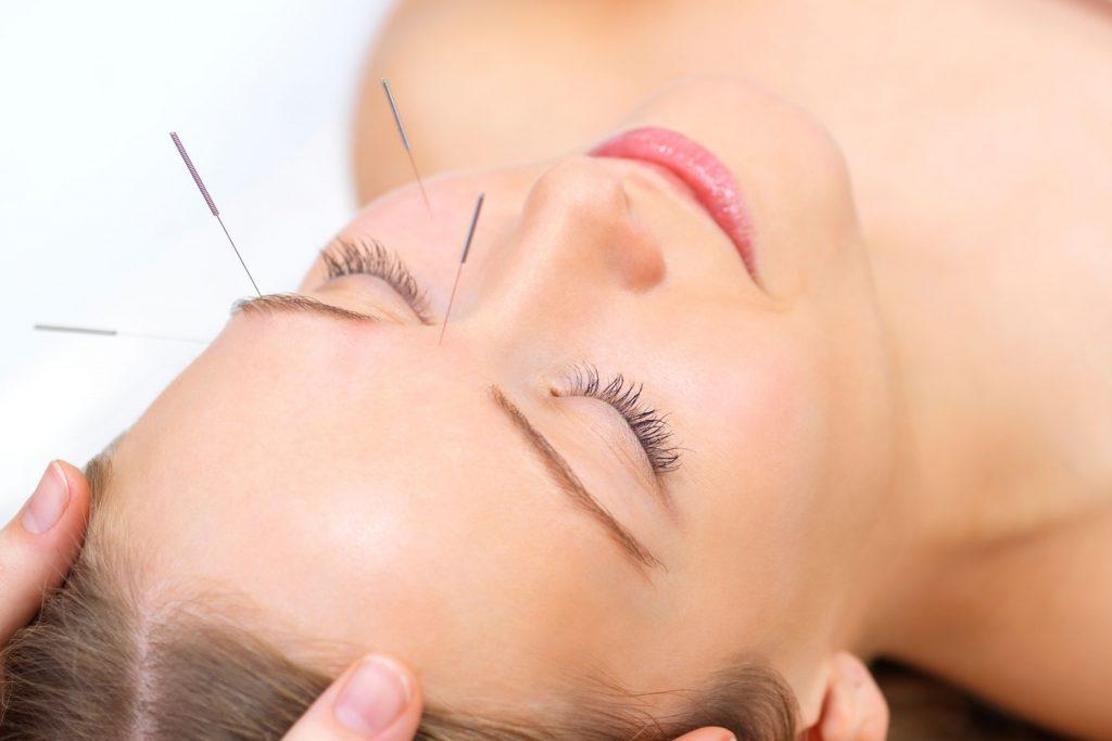 Formation acupuncture : soins prodigués par un acupuncteur
