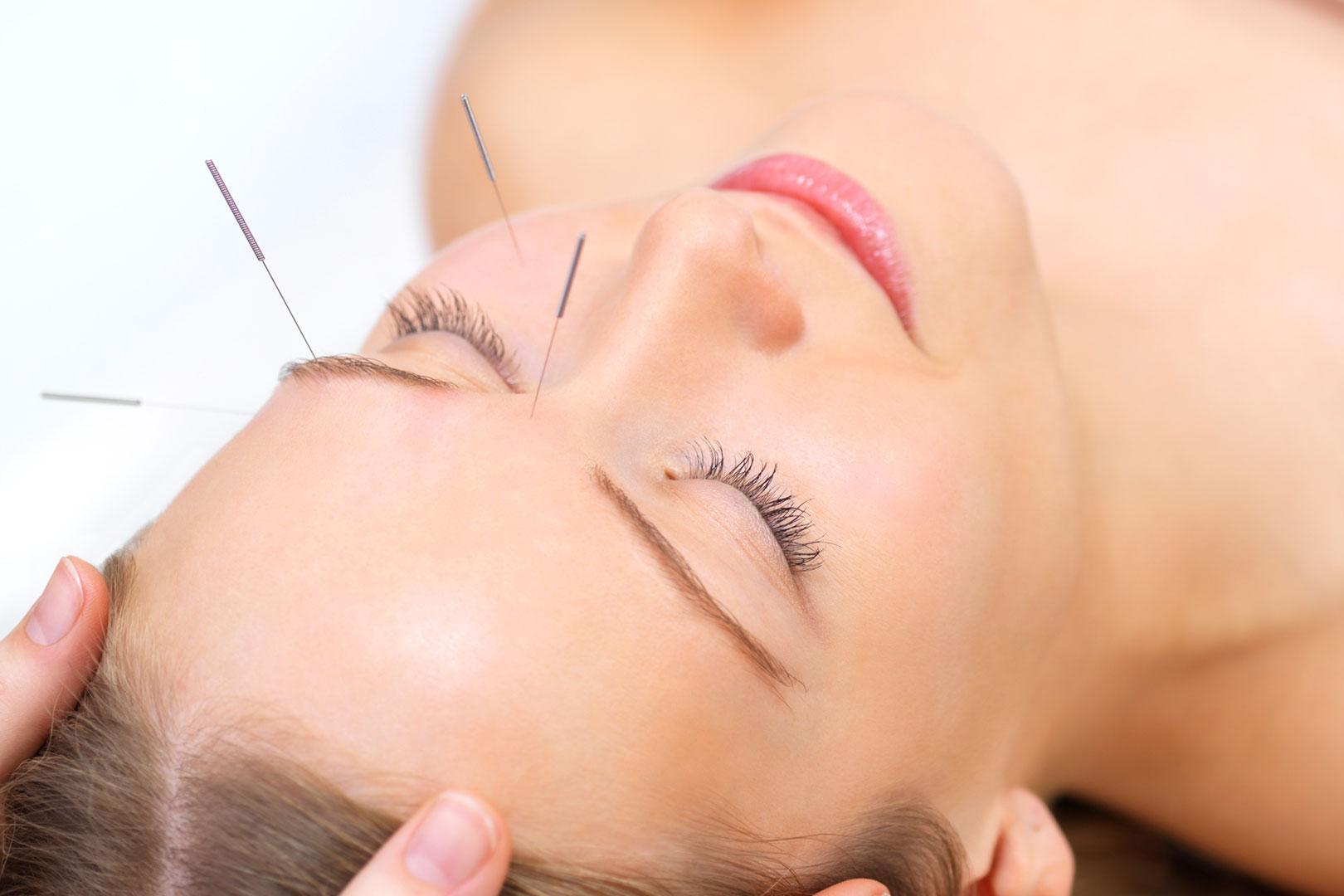 Soins prodigués par un acupuncteur