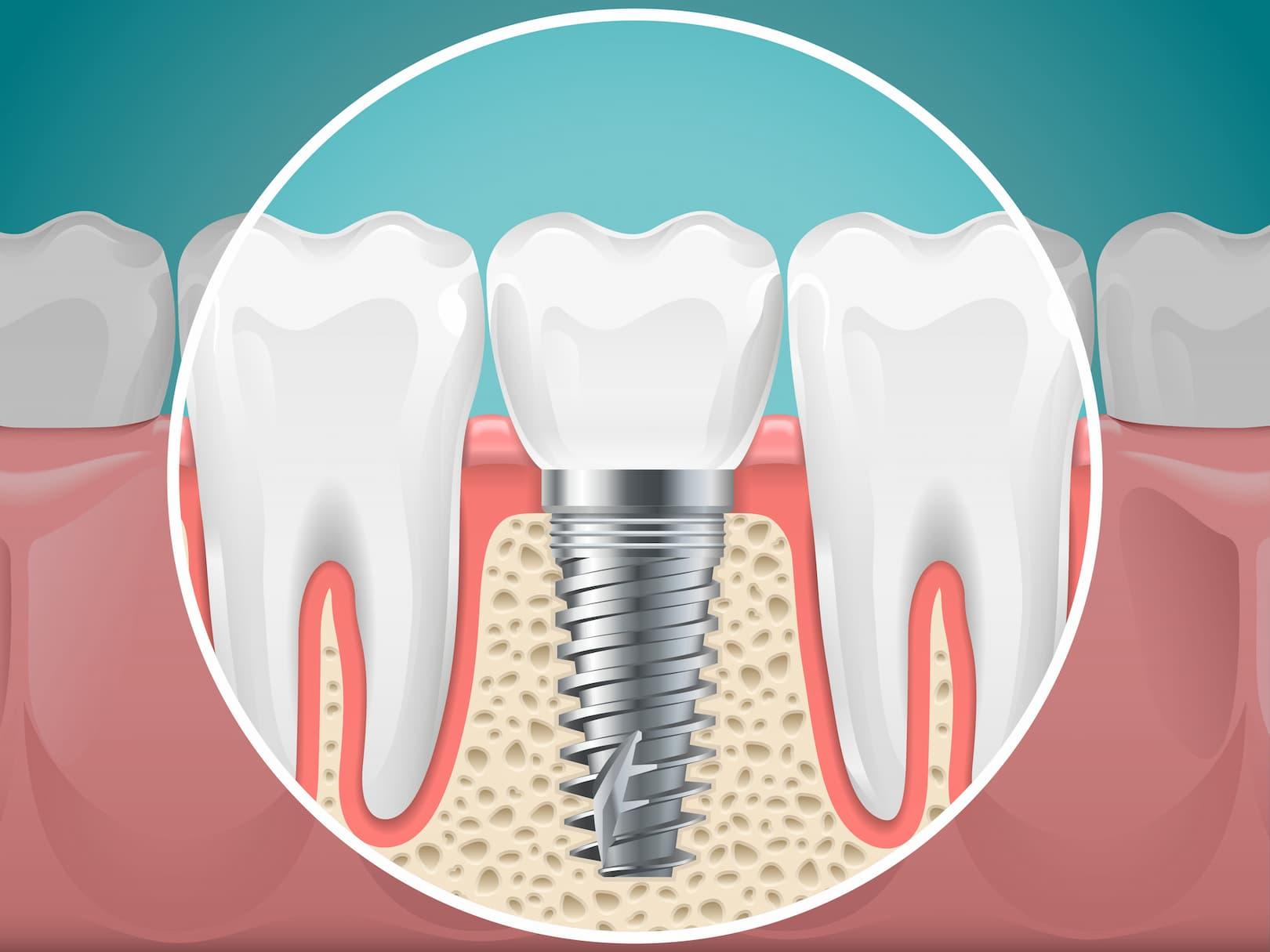 Implants dentaires, kystes, dents incluses, orthodontie... Les applications du cone beam sont nombreuses.