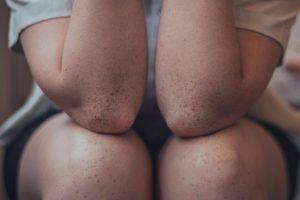 Psoriasis : définition