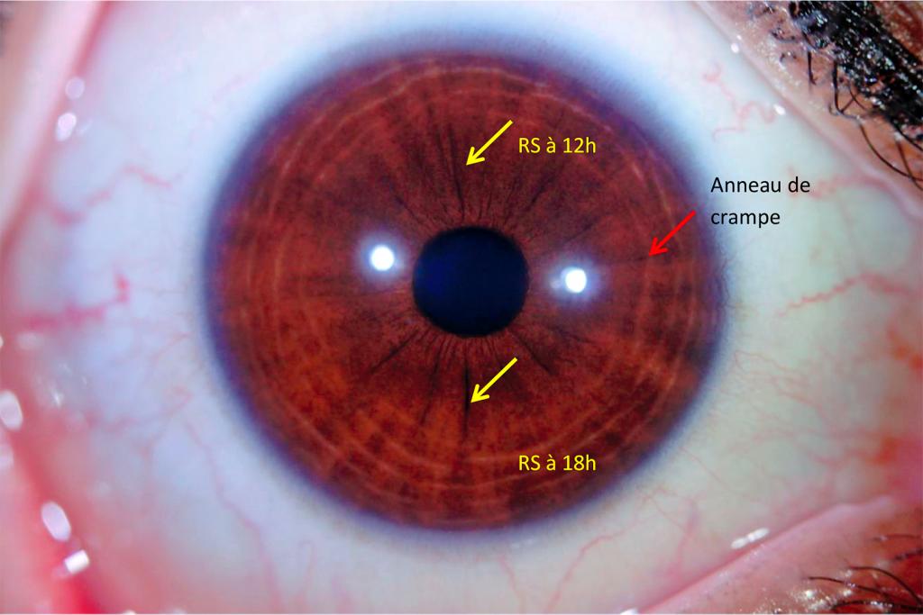 Cas concret : fatigue et manque de concentration, que fait un iridologue ?